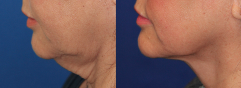 FaceTite Chin Before & After Photo