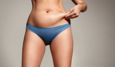 CoolSculpting Palm Desert